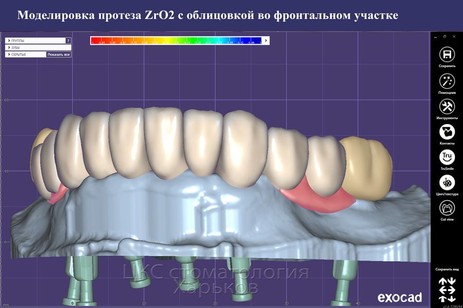Дизайн протеза на зубных имплантах мультилеер