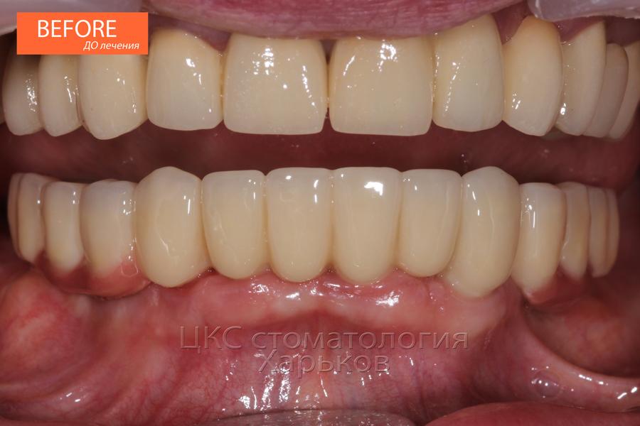Зубы ПОСЛЕ имплантации