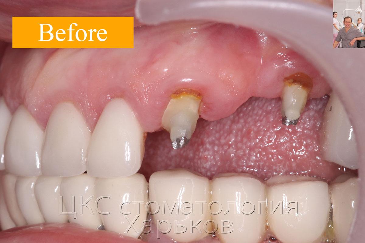 ДО лечения, разрушенные зубы