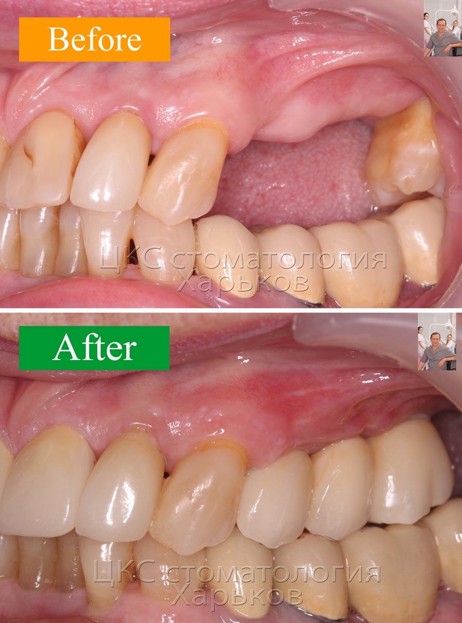 ДО и ПОСЛЕ протезирования зубов