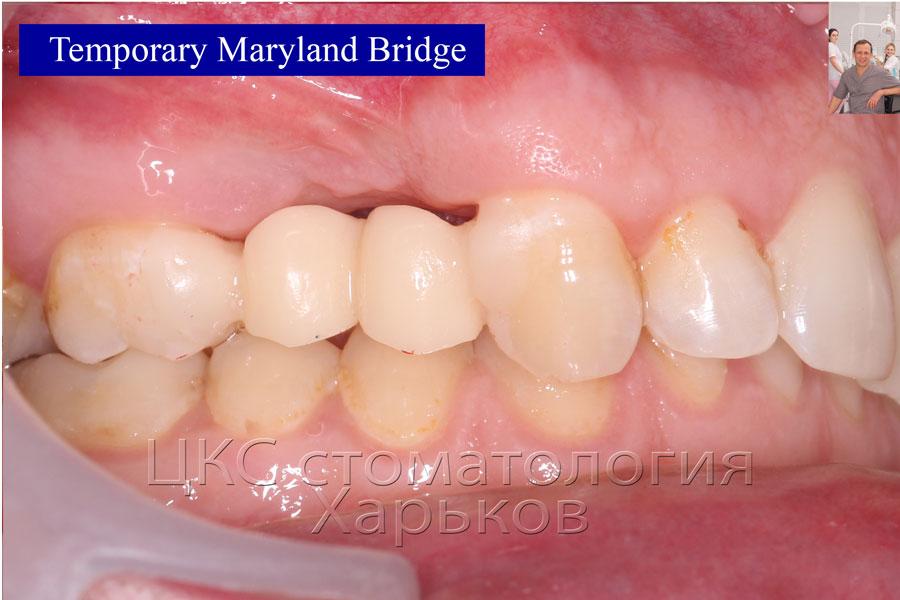 Временный протез приклеен без травмирования зубов