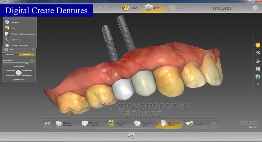 Программа позволяет проводить со всеми видами стоматологических протезов