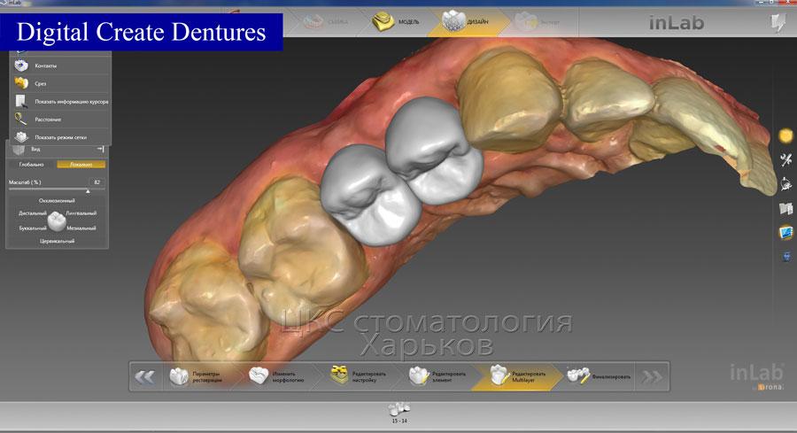 Цифровая моделировка зубных протезов