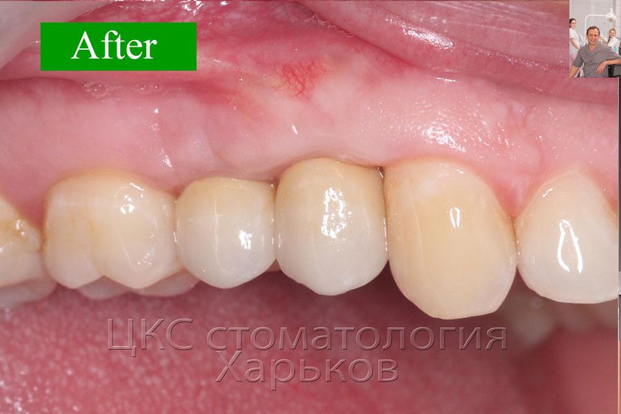 Фото работы ПОСЛЕ имплантации, стоматология Харьков