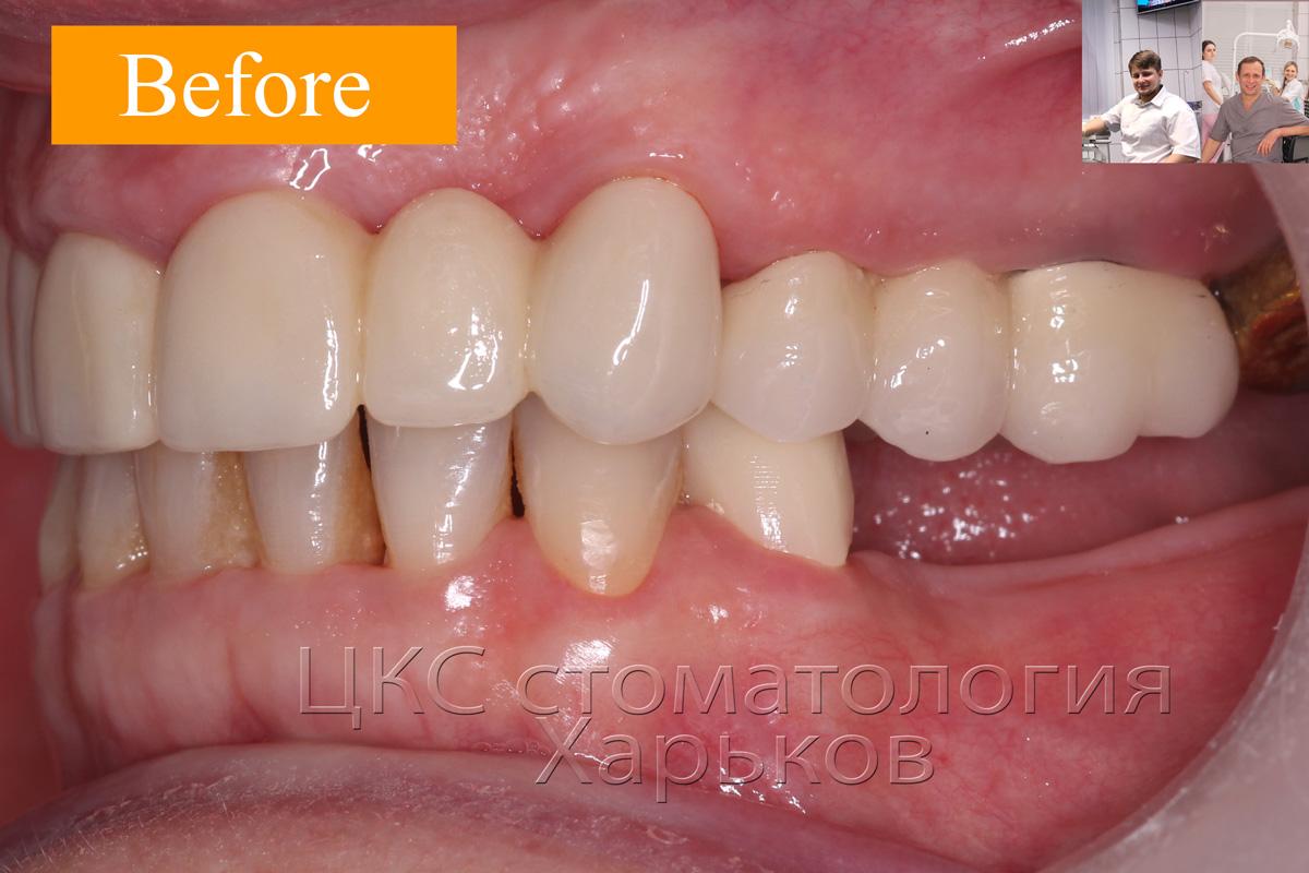 ДО проведения зубной имплантации