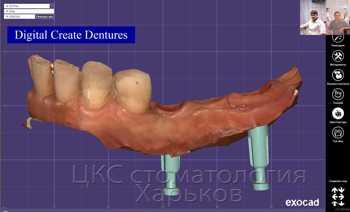 Цифровая модель с точным позиционированием зубных имплантов