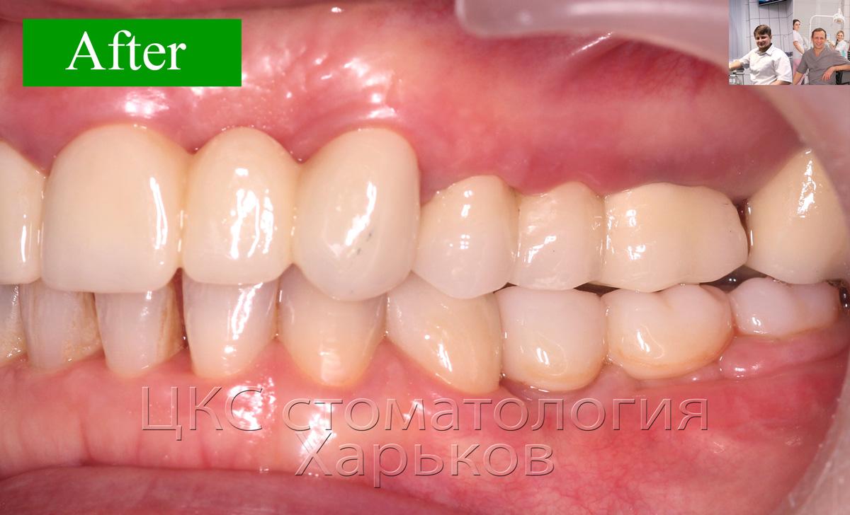 ПОСЛЕ стоматологического лечения стоматология Харьков