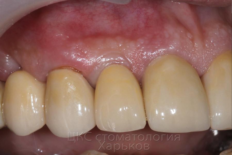 ПОСЛЕ зубной имплантации стоматология Харьков