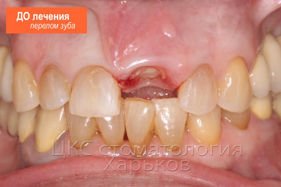 Перелом зуба, ДО имплантации