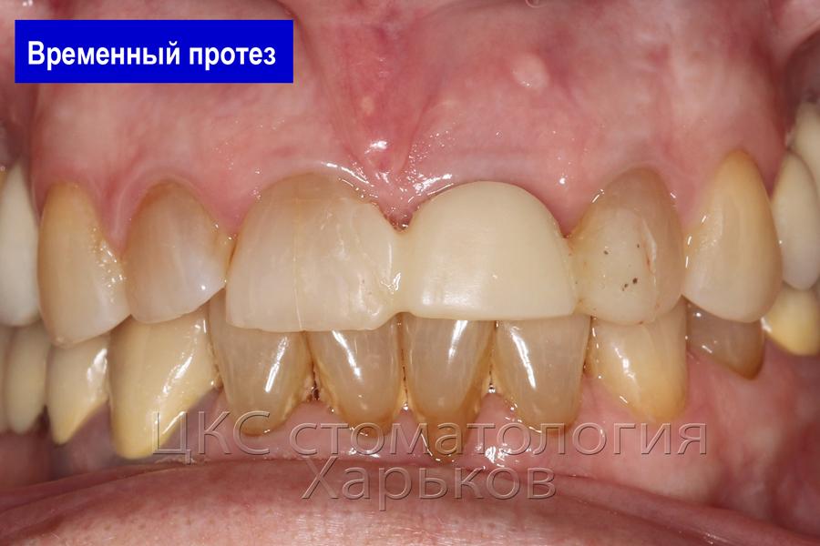 Временный зуб в день имплантации