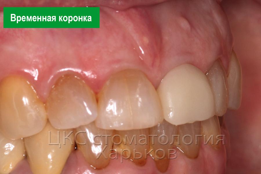 Объем мягких тканей соответствует соседним зубам