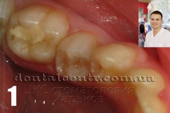 зуб с пломбой плохого качества фото