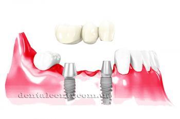 Противопоказание зубной имплантации