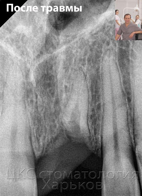 Перелом корня на рентгенограмме