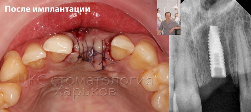 Фото после операции имплантации