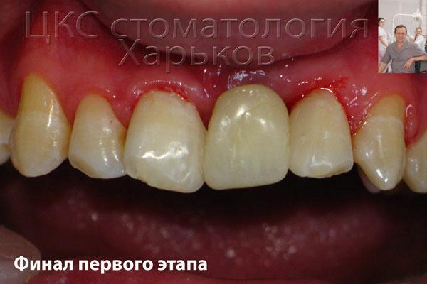 Первый этап зубной имплантации