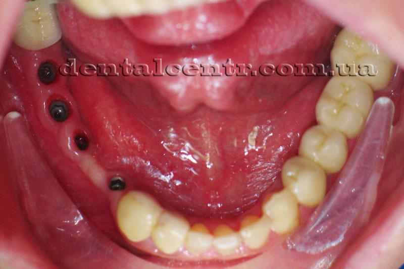Установлены зубные импланты фото