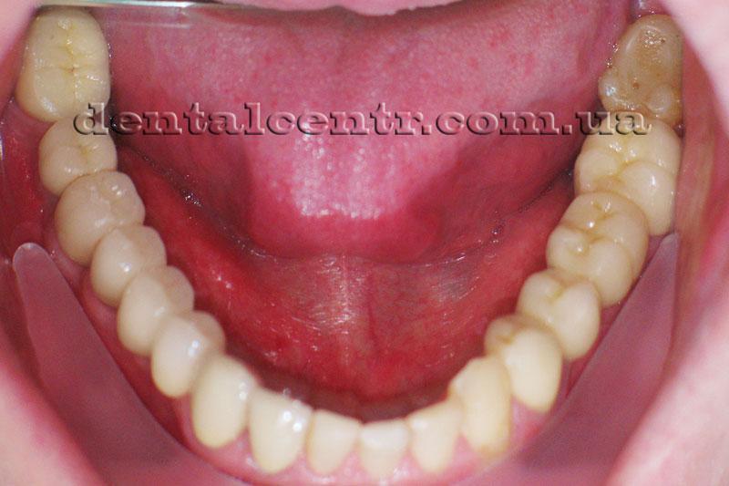 Финальное фото протезирования на зубных имплантах
