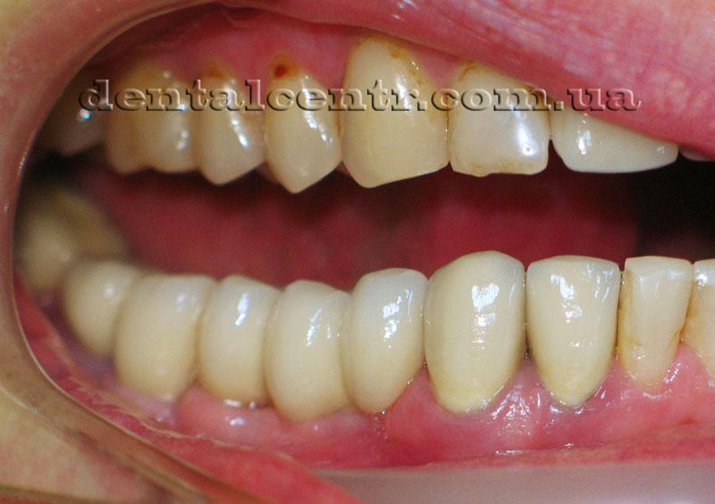 Фото протезирования на зубных имплантах