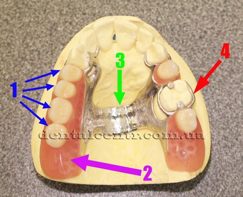 Фото бюгельного протеза верхней челюсти