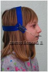 лицевая дуга, вспомогательная аппаратура для брекетов