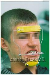 лицевая маска, вспомогательная аппаратура для брекетов