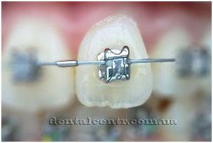 металлические  самолигирующие брекеты фото