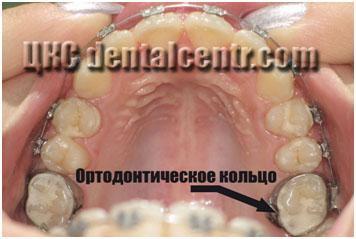 Ортодонтические кольца на зубы