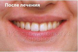 фото после ортодонтического лечения