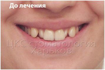 фото до ортодонтического лечения
