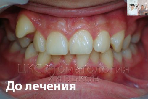 Неровные зубы до лечения металлическими брекетами