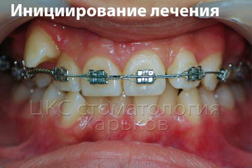 Установка брекетов сначала на одну челюсть облегчает адаптацию к металлическим брекетам