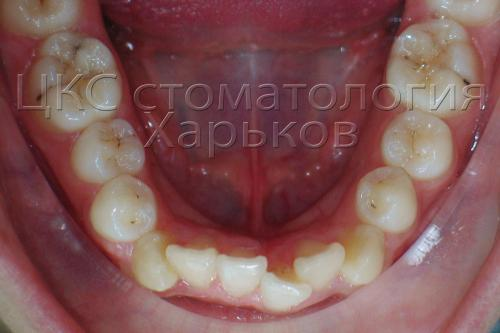 Металлические брекеты исправляются скученное положение зубов