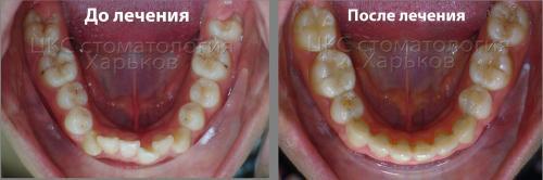 Фото до и после лечения скученного положения зубов металлическими брекетами