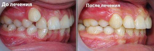 Фото до и после лечения металлическими брекетами случая дистопированного клыка