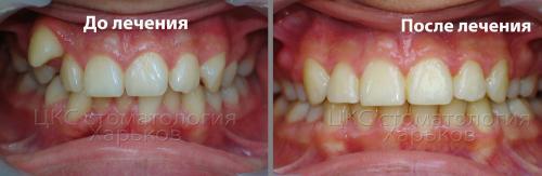 Фото до и после лечения металлическими брекетами
