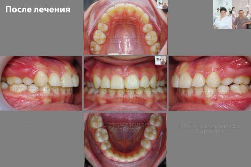 Прикус пациента после лечения металлическими брекетами