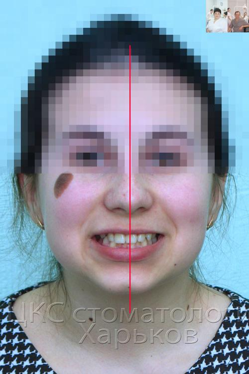Определение средней линии лица и улыбки до брекетов