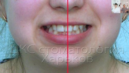 Металлические брекеты исправляют среднюю линию улыбки