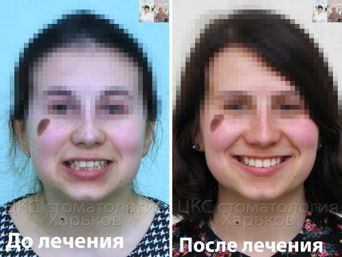 После лечения металлическими брекетами улыбка пациента стала красивой
