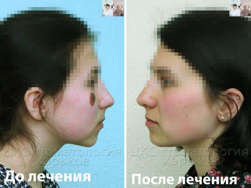 Профиль  до и после лечения металлическими брекетами