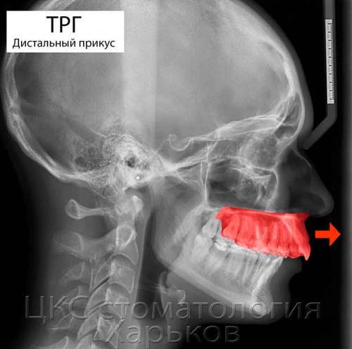 ТРГ снимок при смещении верхней челюсти мезиально