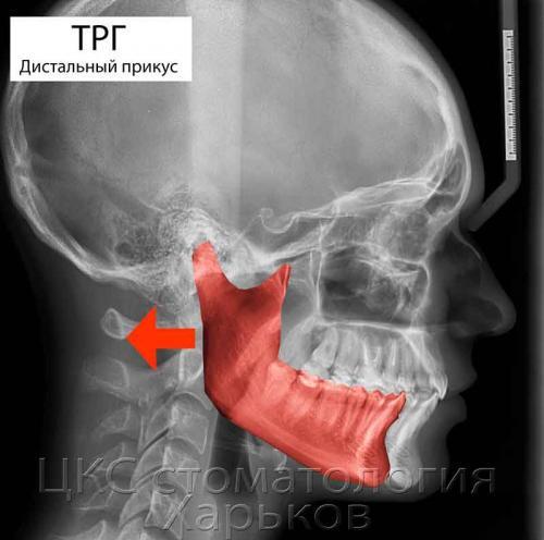 ТРГ снимок при смещении нижней челюсти назад
