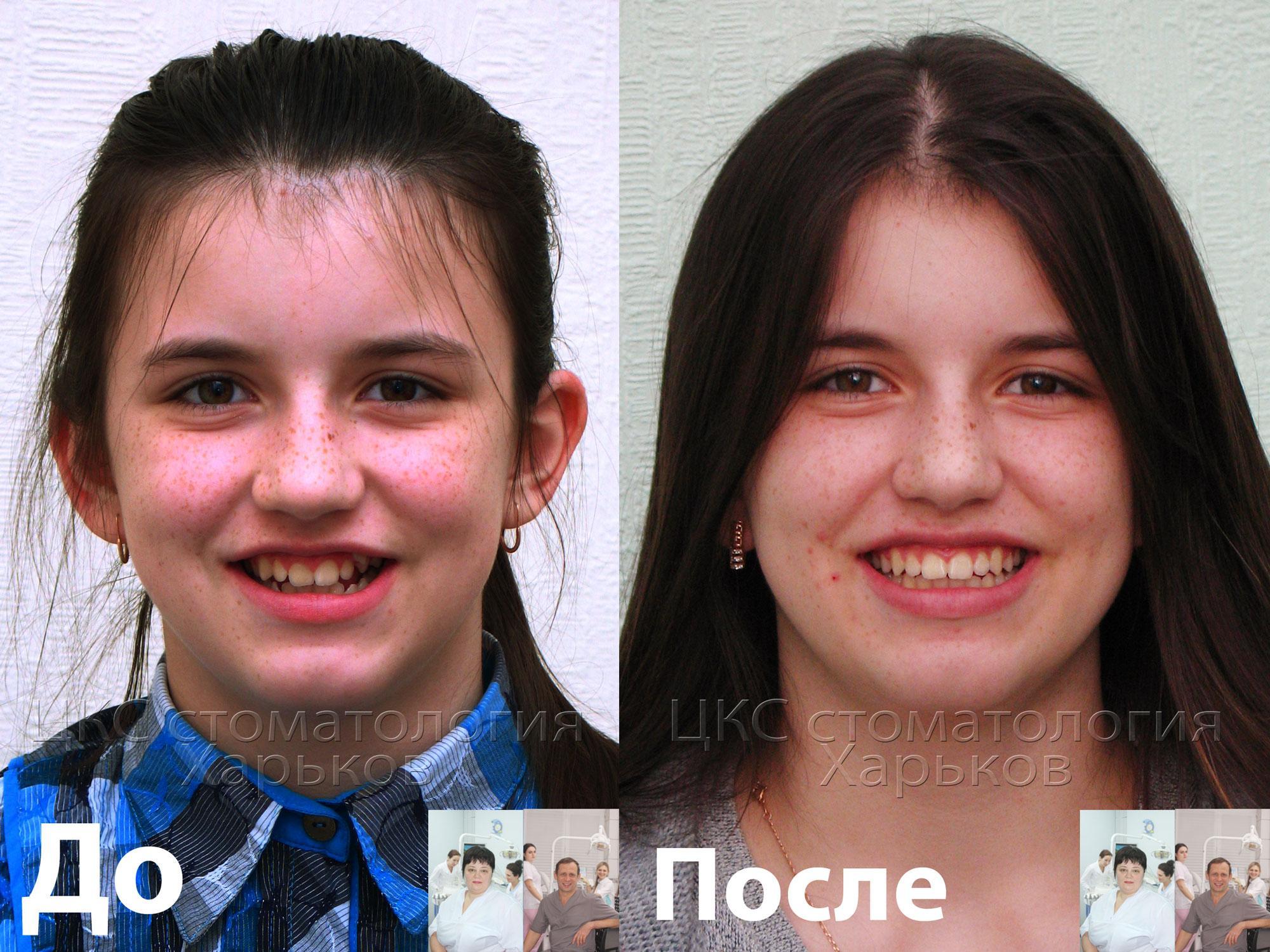 Лечение брекетами. Фото улыбки до и после