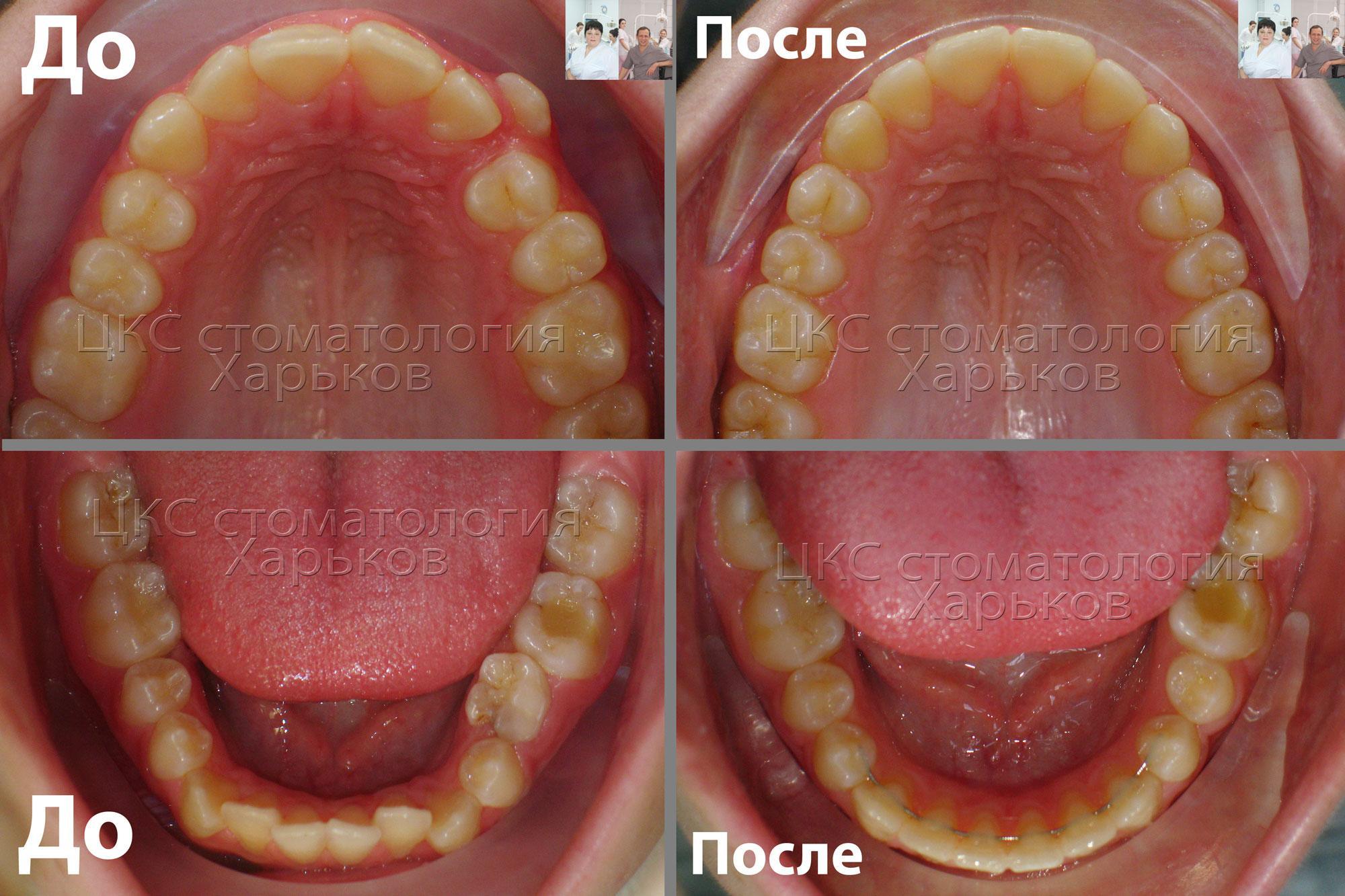 Лечение брекетами. Фото зубного ряда до и после