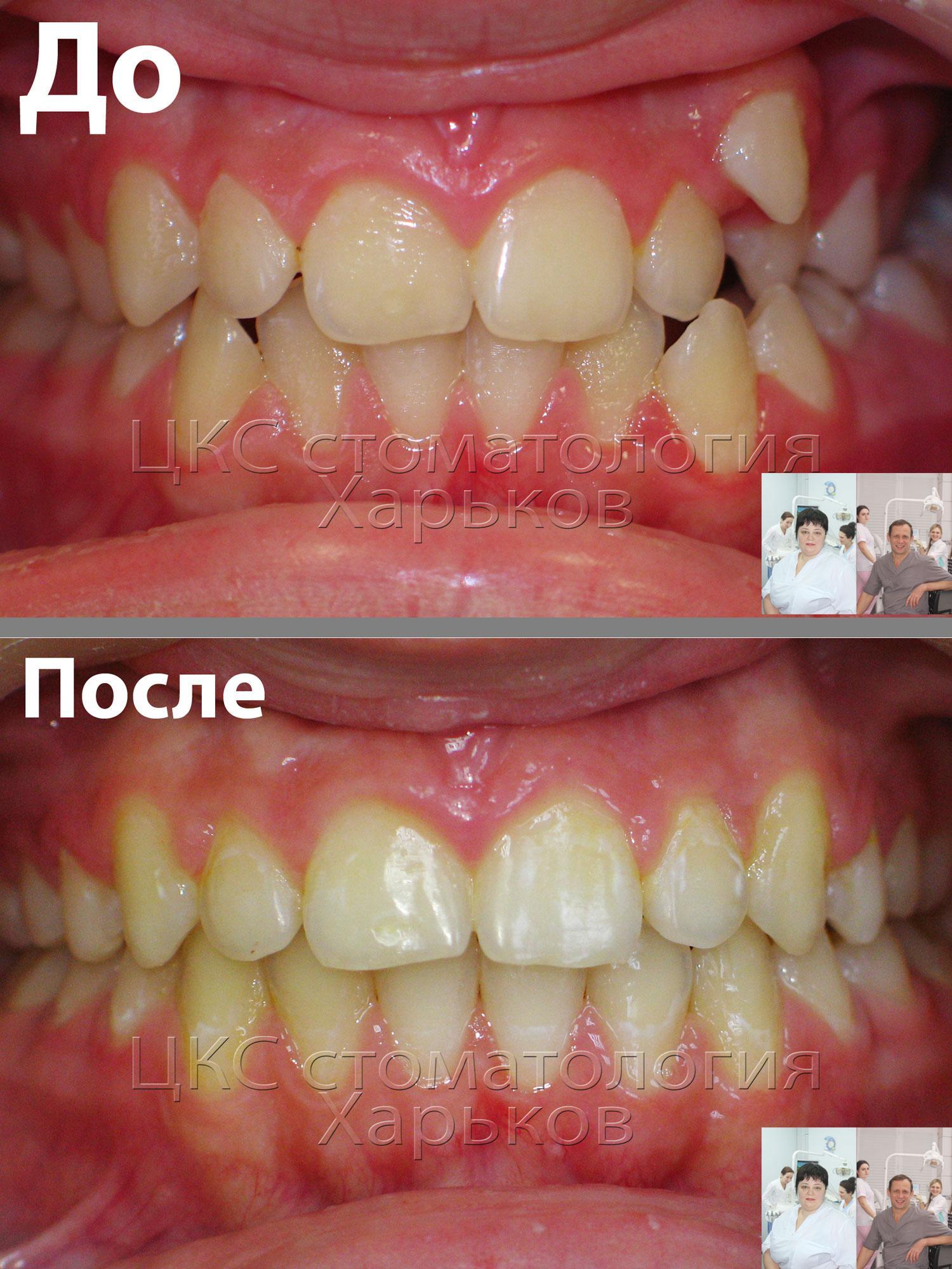 Неровные зубы, лечение брекетами. Фото до и после