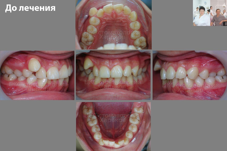 Прикус пациента до лечения металлическими брекетами