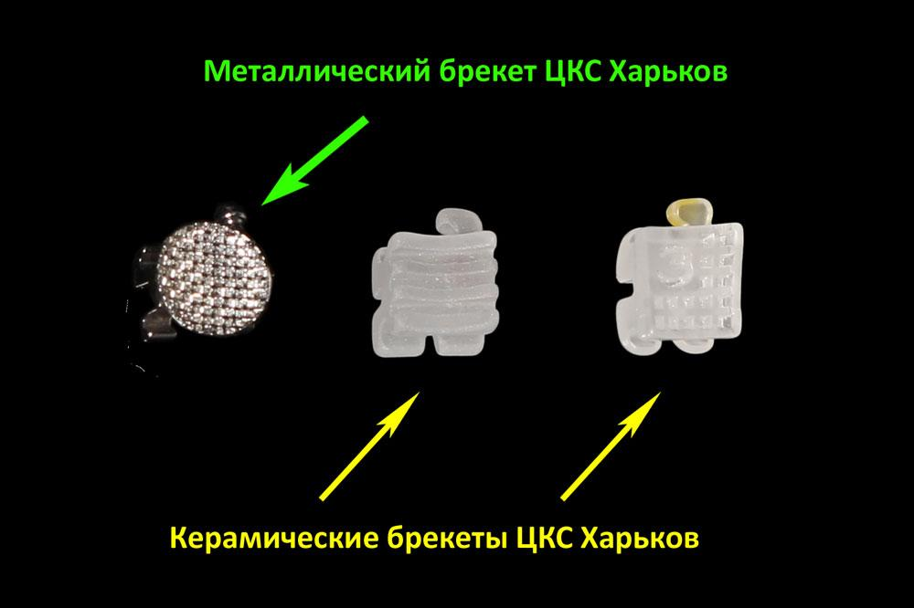 Фото фиксирующих решеток различных типов брекетов