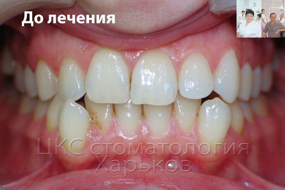 Неровные зубы до лечения керамическими брекетами