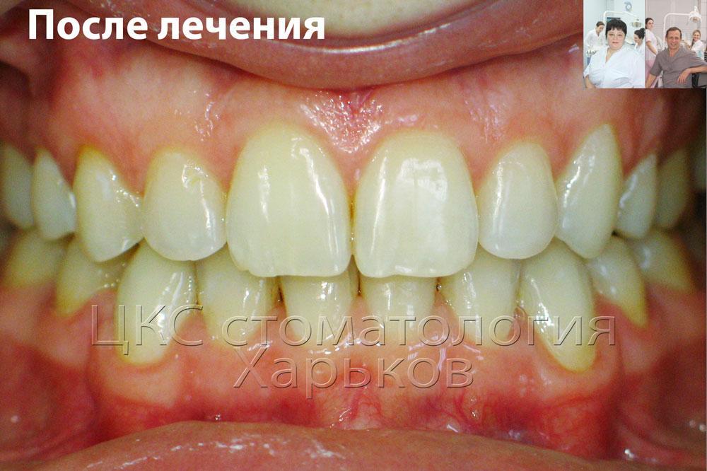 Улыбка пациента после лечения керамическими брекетами